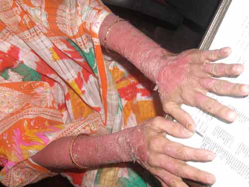 Advanced case of psoriasis.